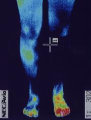 骨盤ベルトを使った椎間板ヘルニアの治療例
